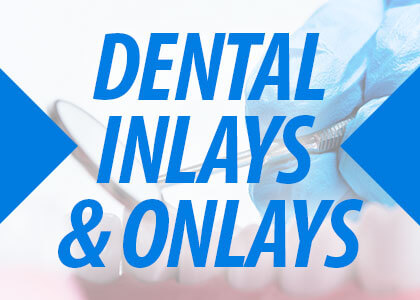 Dental Inlays & Onlays