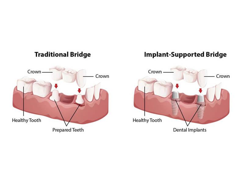 Traditional Bridge Vs Implant Supported Bridge