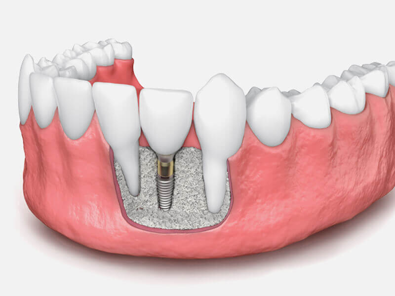 Bone Graft in Gums