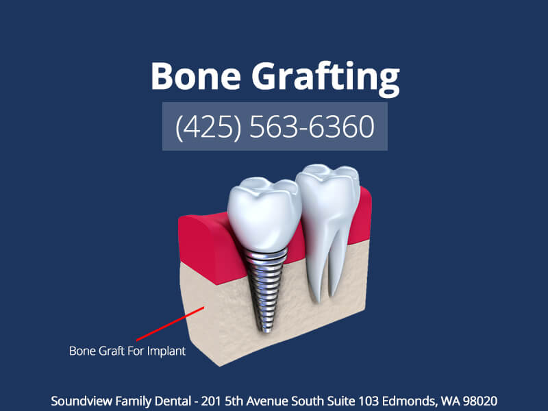 Bone Grafting