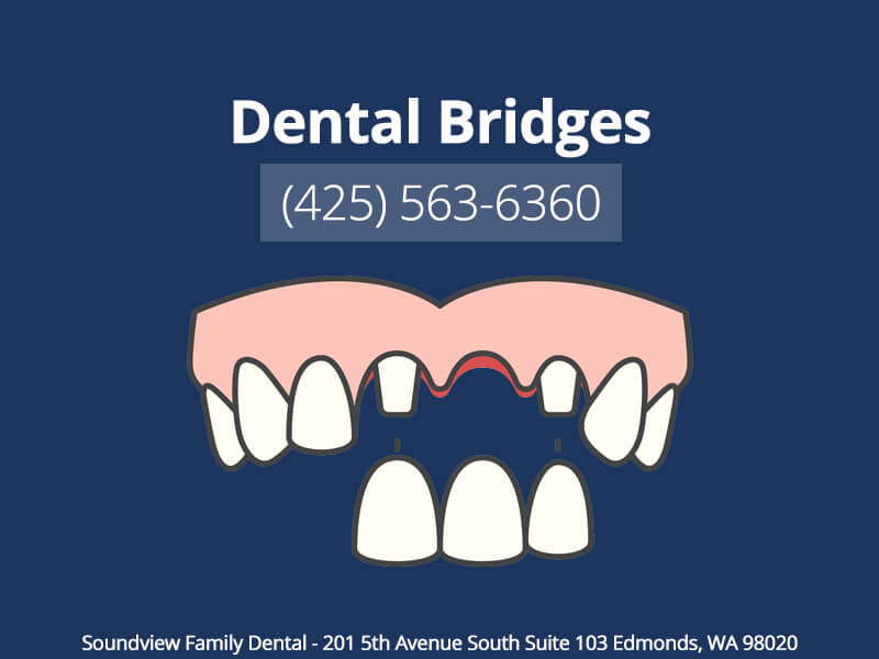 Dental Bridges In Edmonds, WA