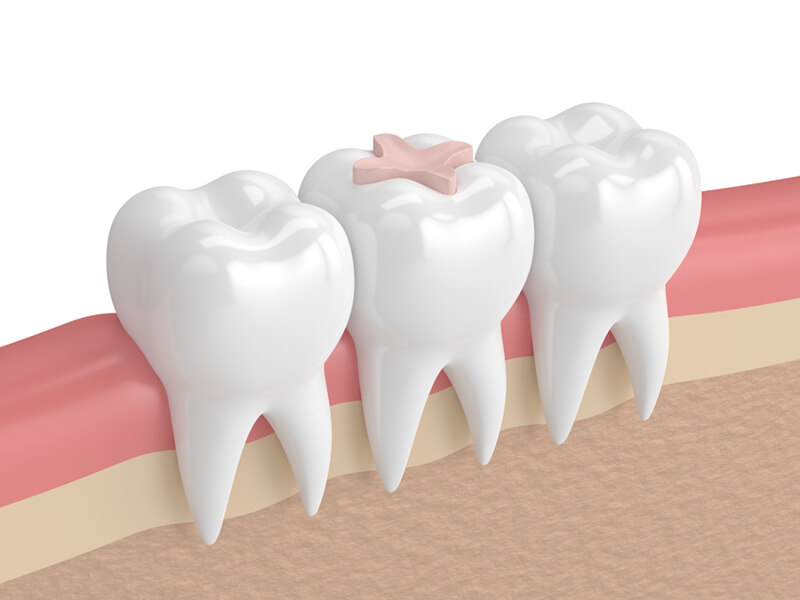 Dental Inlay - Multiple Teeth In Gums