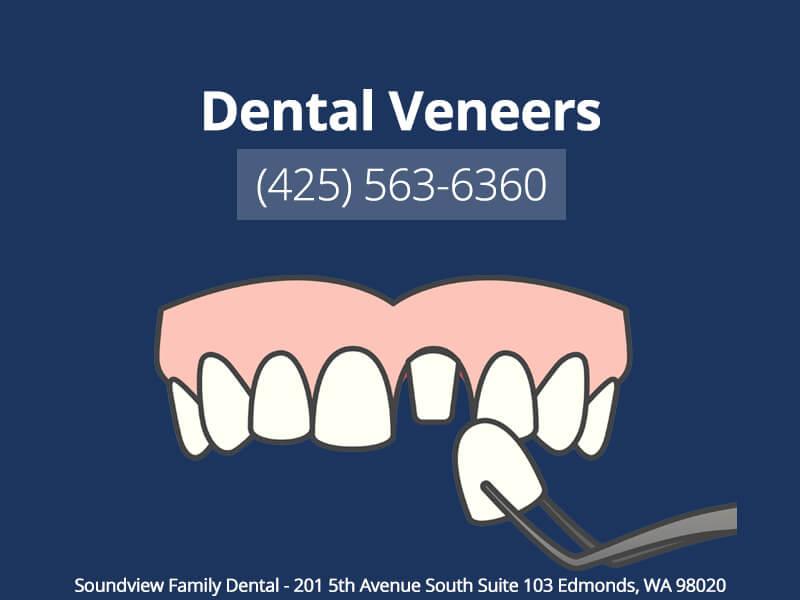 Dental Veneers in Edmonds WA
