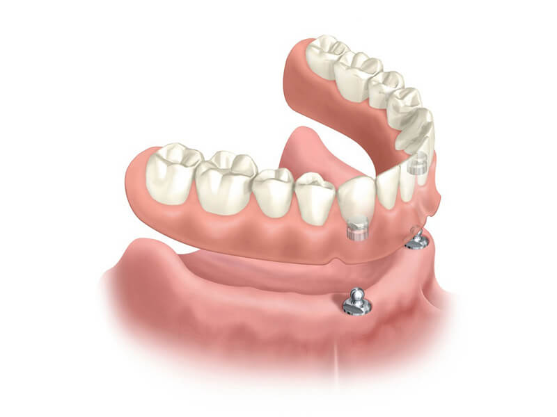 Implant Supported Denture (Overdenture)