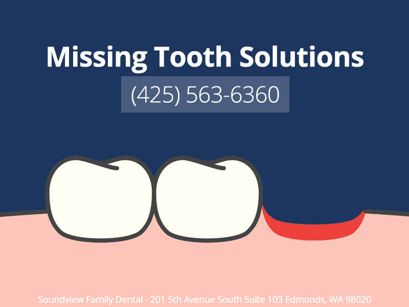 Missing Tooth Solutions In Edmonds, WA