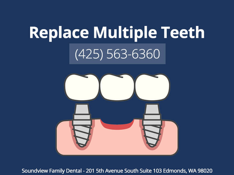Multiple Teeth Replacement In Edmonds, WA