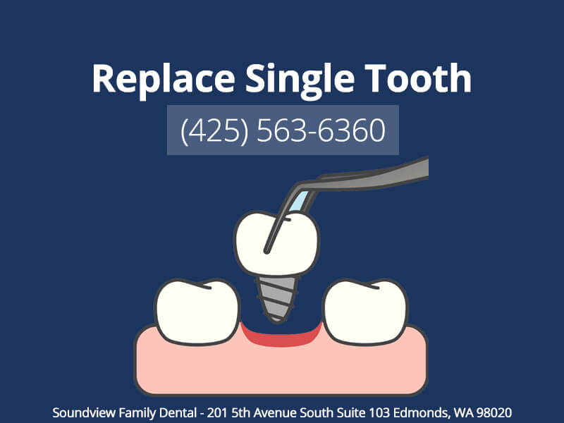 Replace Single Tooth