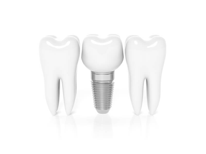 Row Of Teeth With Single Dental Implant