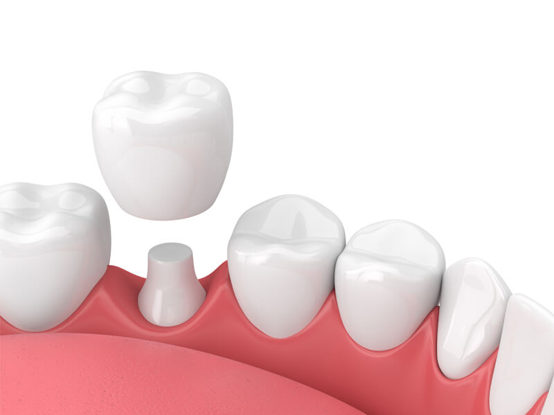 Single Tooth Dental Crown