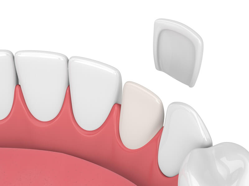 Single Tooth Veneer