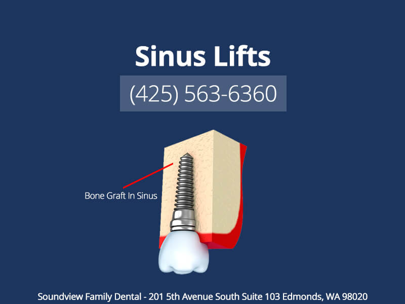 Sinus Lifts in Edmonds WA