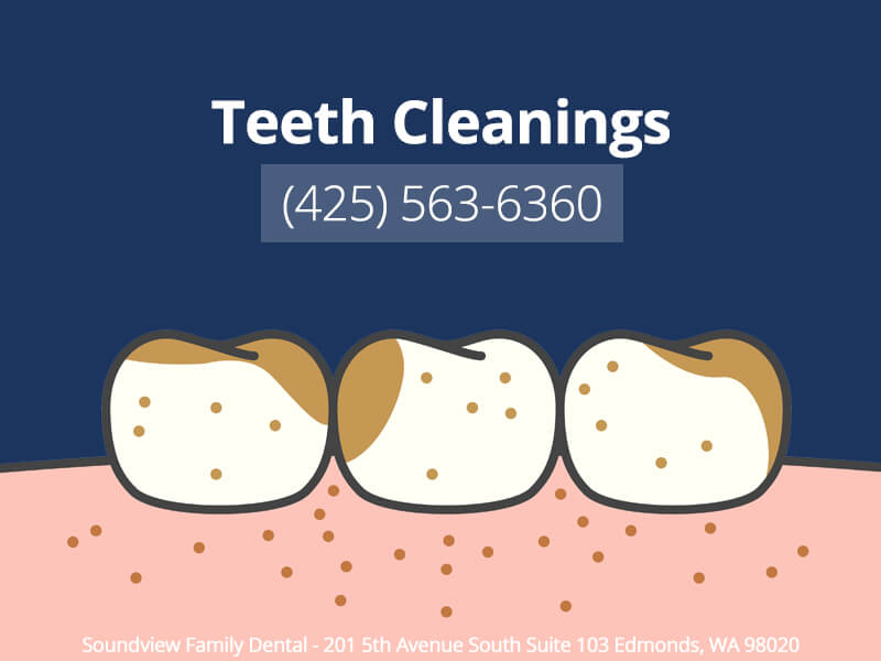 Teeth Cleanings in Edmonds, WA
