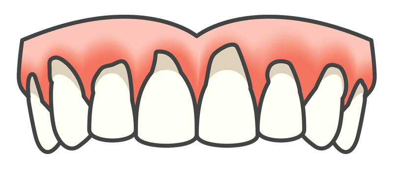 Inflamed Gums From Periodontal Disease