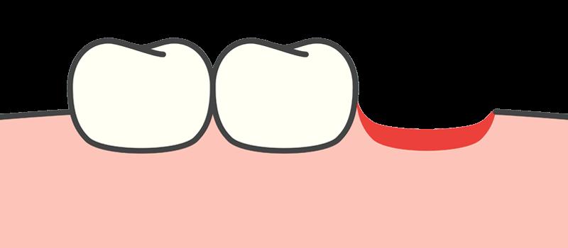Restore Your Missing Teeth