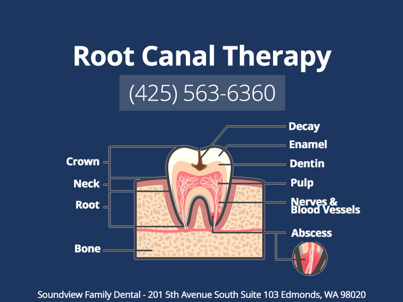 Root Canal Therapy in Edmonds WA