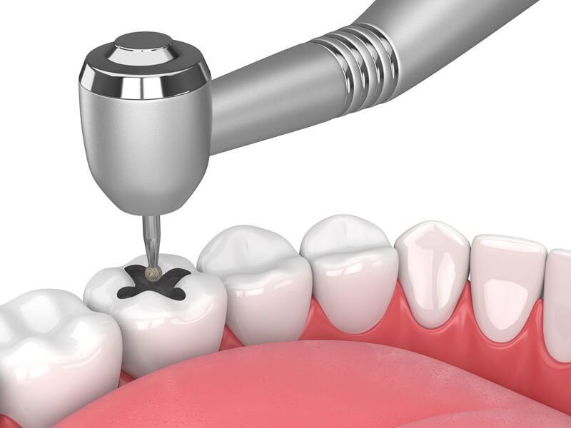Drilling Cavity For Tooth Filling