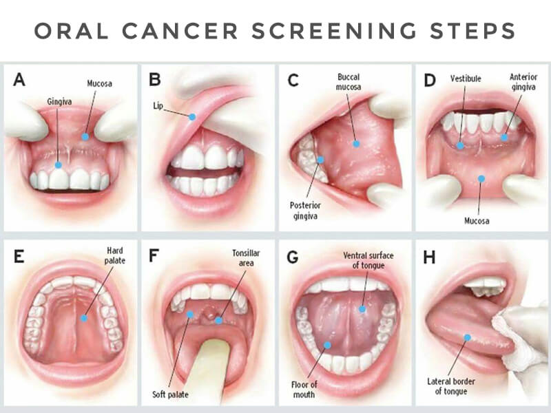 Oral Cancer Screening Steps