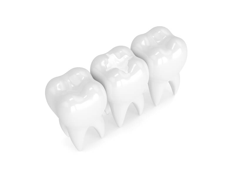 Tooth Colored White Dental Filling