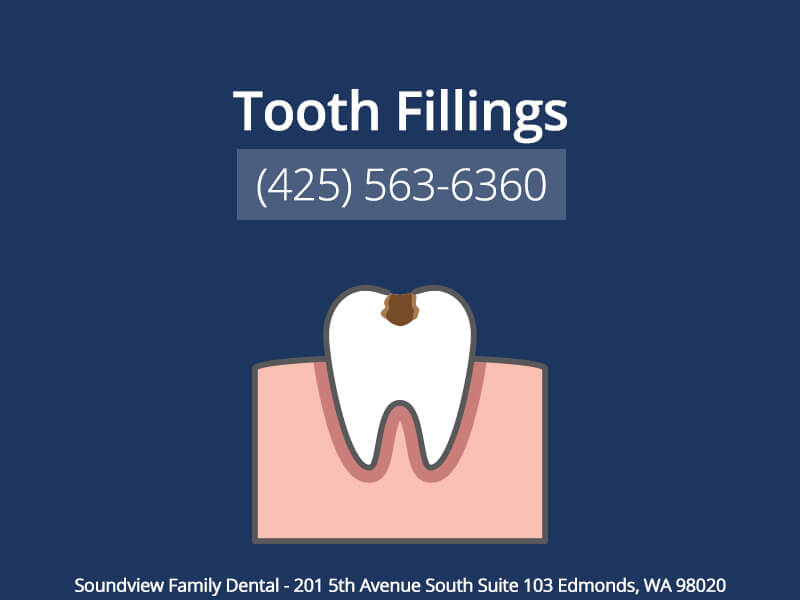 Tooth Fillings in Edmonds WA