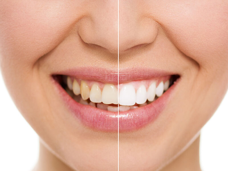 Before and After Tooth Bonding on Woman