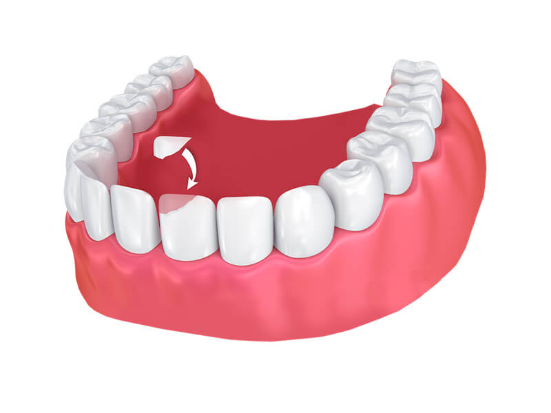 Single Tooth Bonded