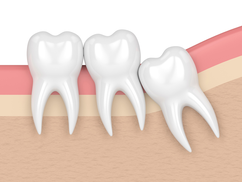 Wisdom Tooth Crowding In Gums