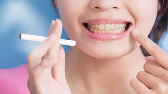 Smoking After Removing Wisdom Teeth