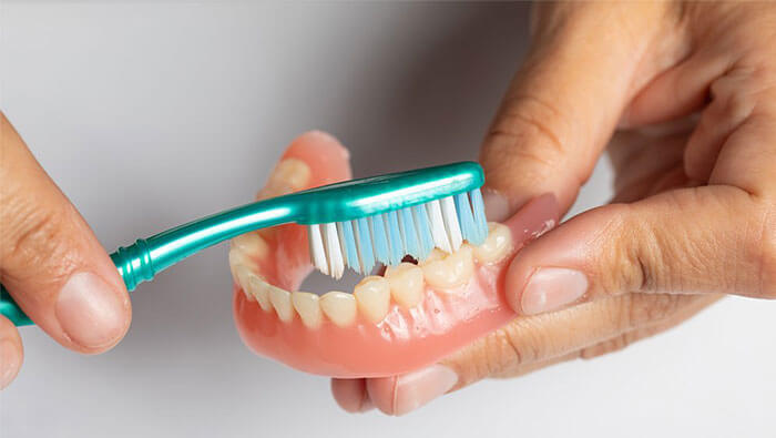 Denture Maintenance: Tips on How to Clean Dentures