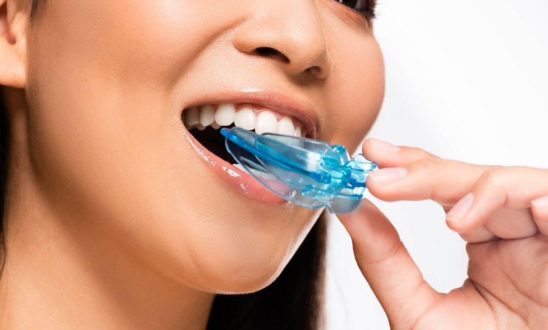 Types of Mouthguards and Their Benefits